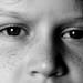 choroba v ociach