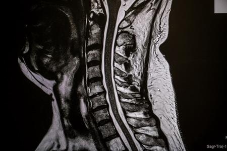 Operácia krčnej chrbtice